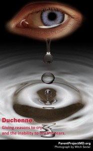 Duchenne. Giving reasons to cry and the inability to dry the tears.